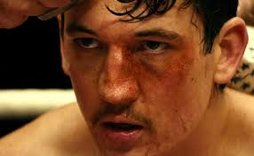 BLEED FOR THIS PIC